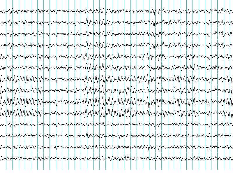 Epilepsia-crisis-convulsivas-convulsiones-NeuroClass