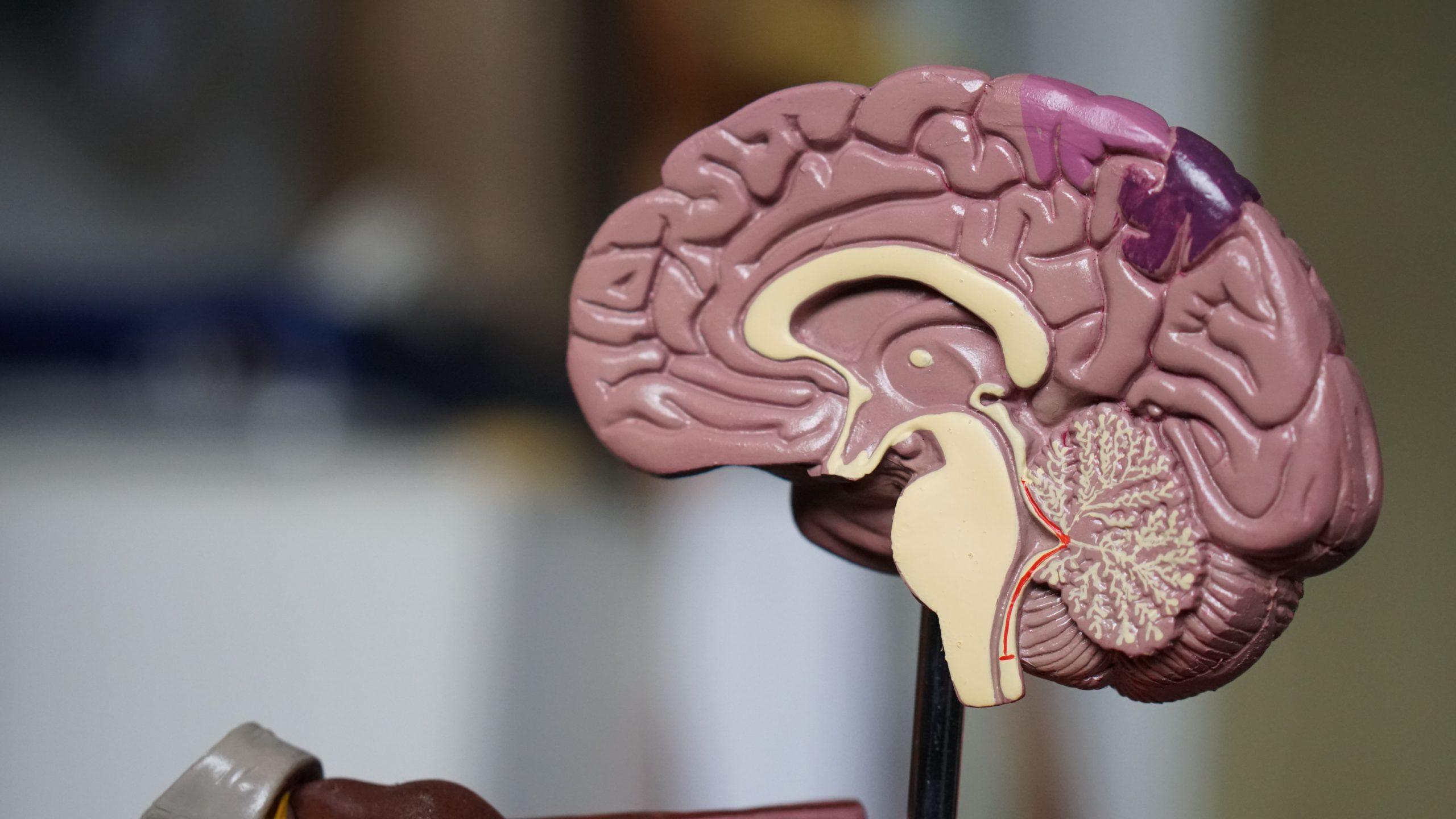 Rehabilitación funciones ejecutivas NeuroClass
