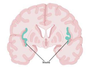 Fibromilagia en el cerebro 1