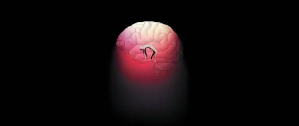 vida después de la muerte cerebral