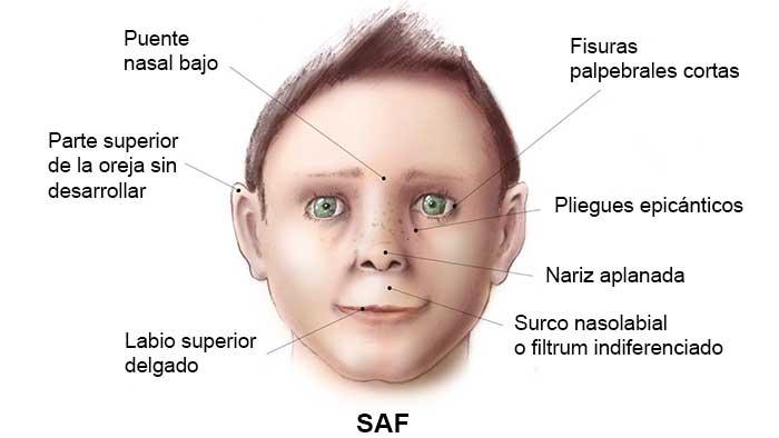 Síndrome alcohólico fetal NeuroClass