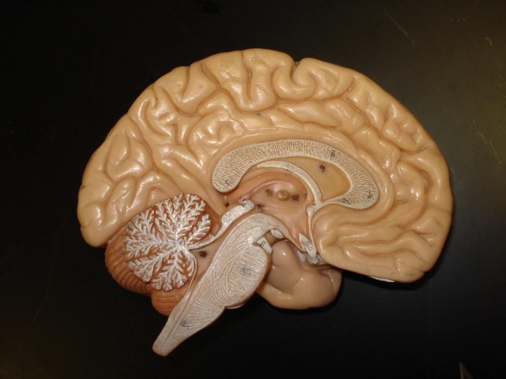 Que-es-chemobrain-cerebro-y-deterioro-cognitivo-por-quimioterapia-NeuroClass