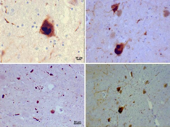 Demencia con cuerpos de Lewy - microscopio - NeuroClass