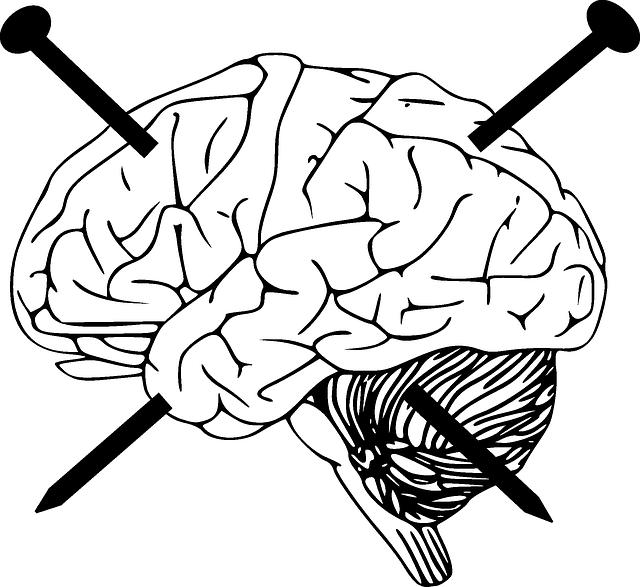 historia-y-principios-de-la-rehabilitación-neurospicológica-neuroclass