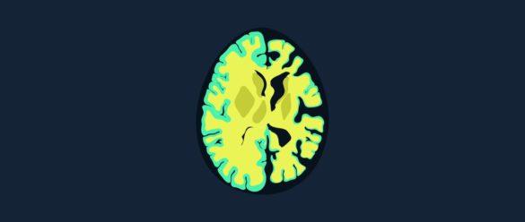 Demencias diagnóstico, tipos y clasificación