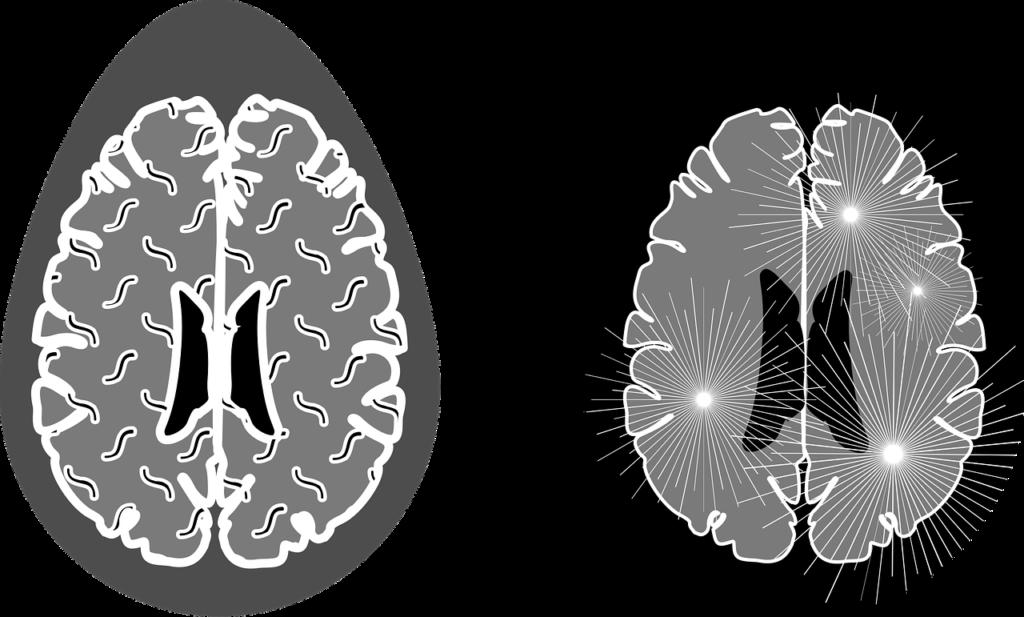 Diagnóstico-tratamiento-o-manejo-de-la-enfermedad-de-Alzheimer-neuroclass
